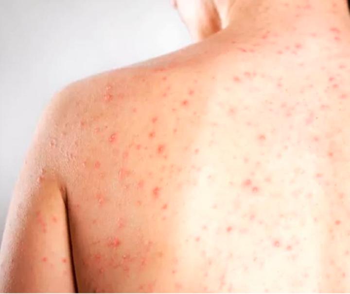 AAEePrc - Vigilância Epidemiológica de Birigui registra caso suspeito de sarampo