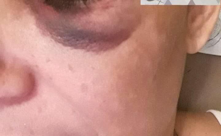 FB IMG 1577209427821 720x445 - Mulher é violentamente agredida por companheiro no Novo Stábile