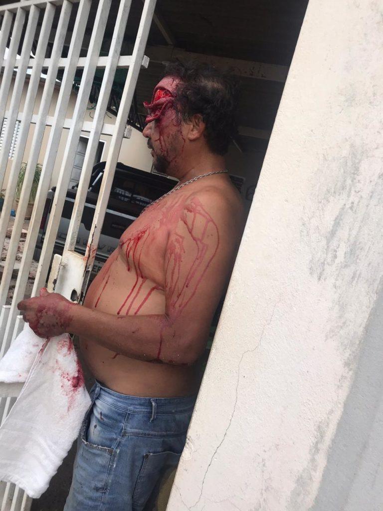 IMG 20200102 WA0008 768x1024 - Homem é atropelado em calçada de casa no Monte Líbano