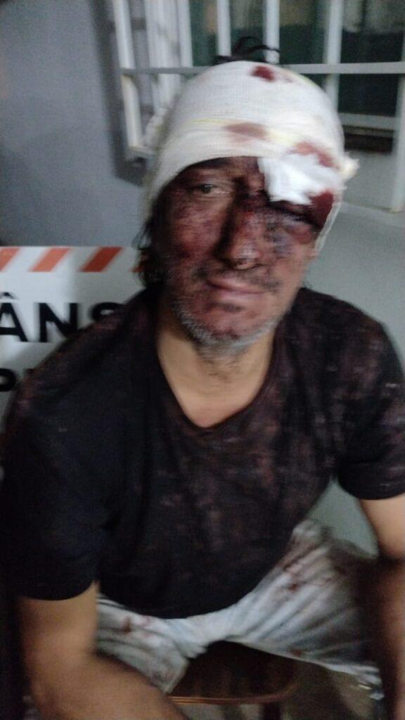 IMG 20210516 WA0011 576x1024 - Ex vereador e mais dois são presos após briga e tentativa de homicídio em Birigui
